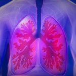 'Centropercento', modelli virtuosi per la cura del tumore al polmone