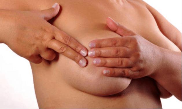 incontri con il cancro al seno