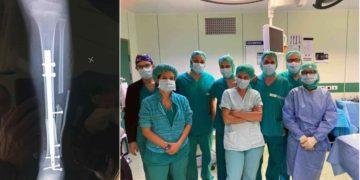 intervento_caviglia (1)
