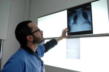 polmoni lastre dottore medico radiografia