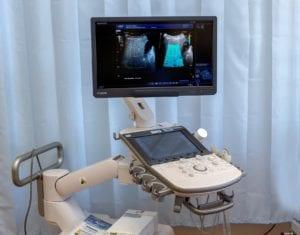 ecografo pediatrico