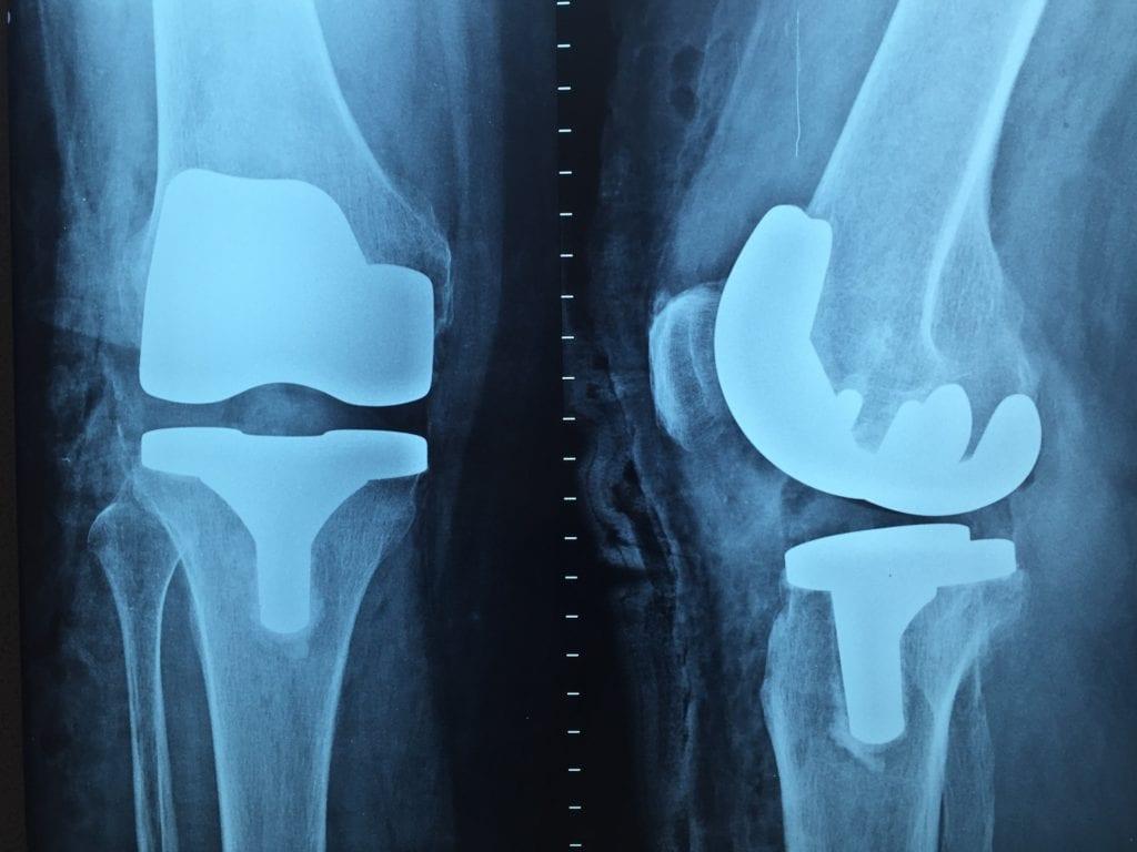 ortopedia fratture pixabay