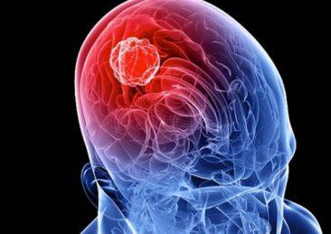 meningite_cervello